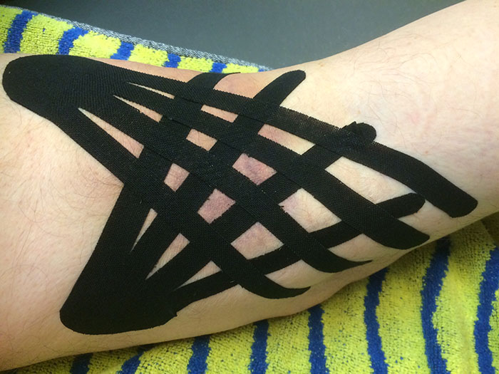 Foto behandeling Medical Taping Concept / Kinesiotape